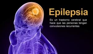 epilepsia-1
