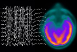 phototake_rm_photo_of_brain_waves